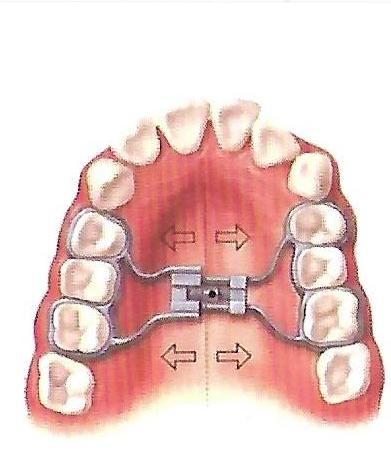 Instructions for Orthodontic Expander.