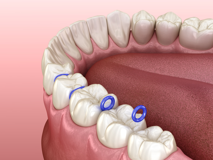 Rubber separator between teeth, preparation for braces placement. Medically accurate dental 3D illustration - stock photo