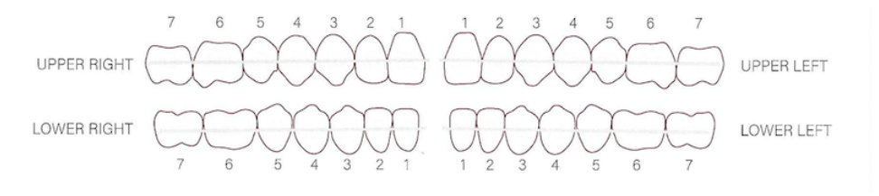 A cartoon of placements on a pair of dental braces where elastics would be connected.