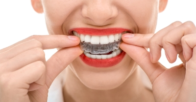 girl putting in clear aligners