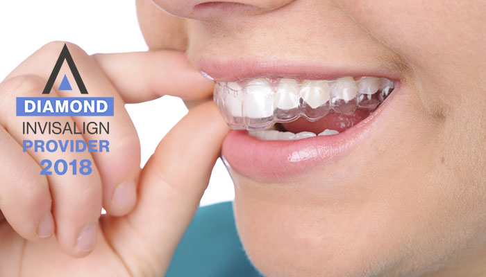 Diamond Invisalign Provider - 2018
